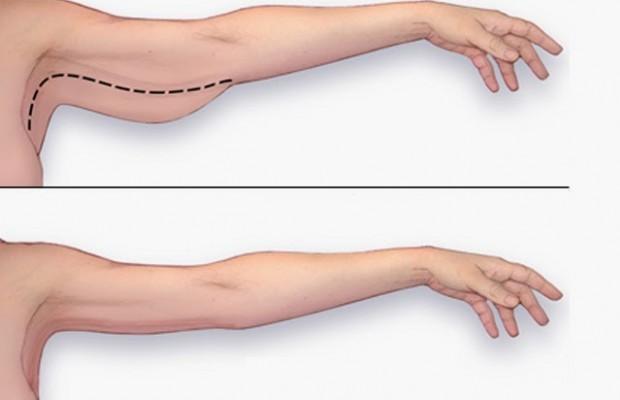 exercice-pour-maigrir-des-bras